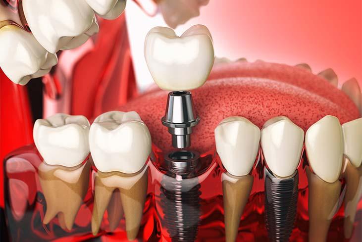 Dental Implants In Dubai