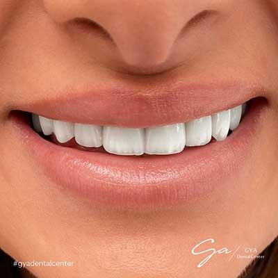 Before and After _Dental Veneers and dental Lumineers