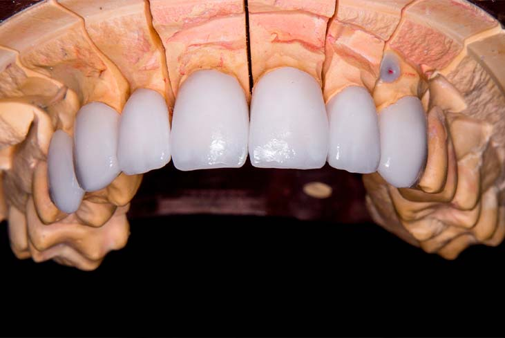 So, What are Dental Veneers