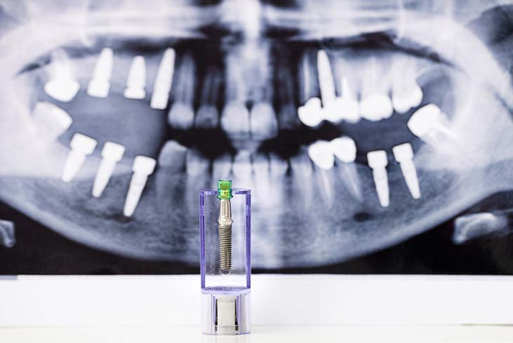 What are the Pros and Cons of Dental Implants