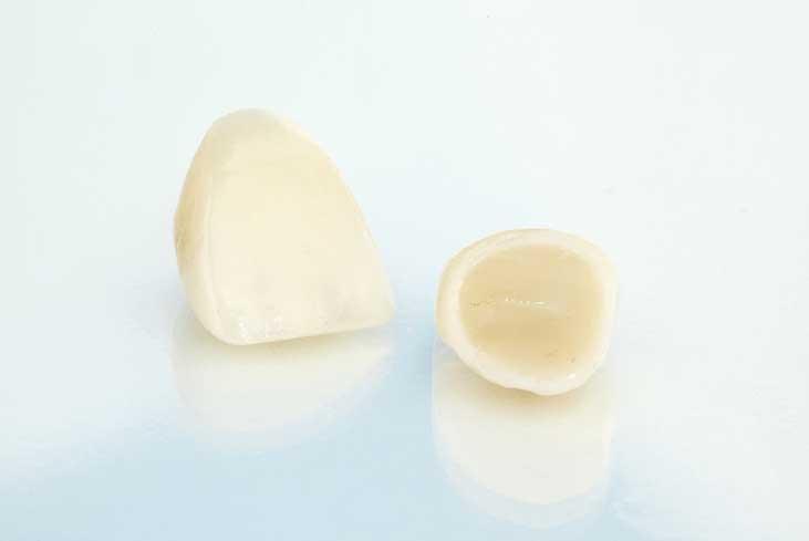 Ceramic-crowns