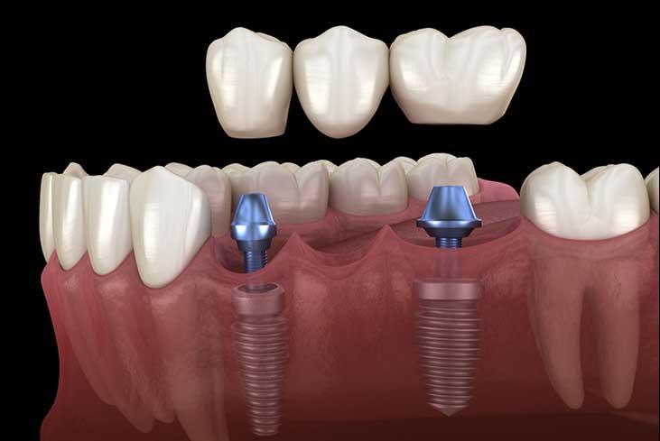 Implant-supported-bridges