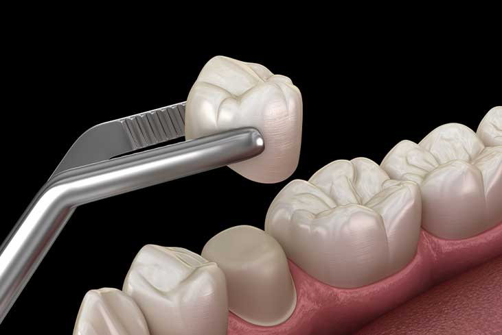 What are the Pros of Dental Crowns