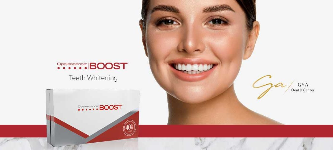 Why Opalescence Teeth Whitening Boost is unique